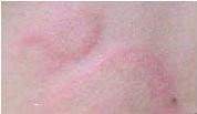 长沙肤康皮肤科医生介绍荨麻疹危害