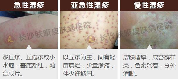 湿疹病发后的症状具体有哪些